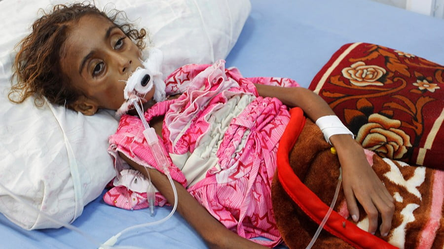 Yemeni children struck down by Cholera. (Photo: Middle East Press)