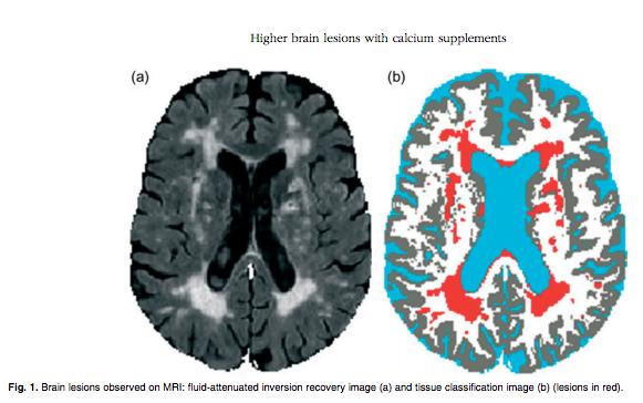 brain-lesions