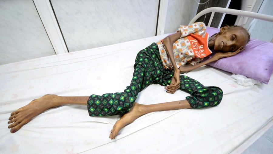 Yemen – After 200,000 Died an Embarrassed U.S. Finally Calls for Negotiations