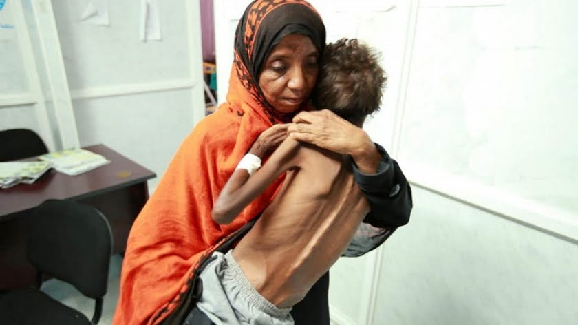 Ongoing Armed Conflict in Yemen is Humanity's Shame