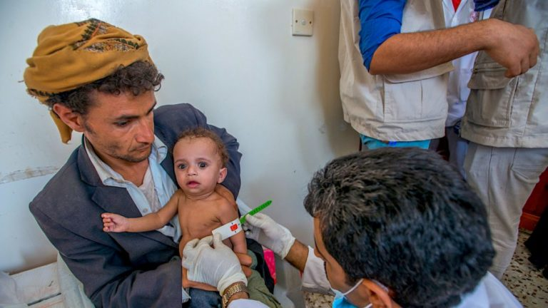 New UN Report: Millions of Yemeni Children Face Acute Malnutrition